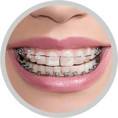 South Calgary Orthodontist | McKenzie Orthodontics Braces
