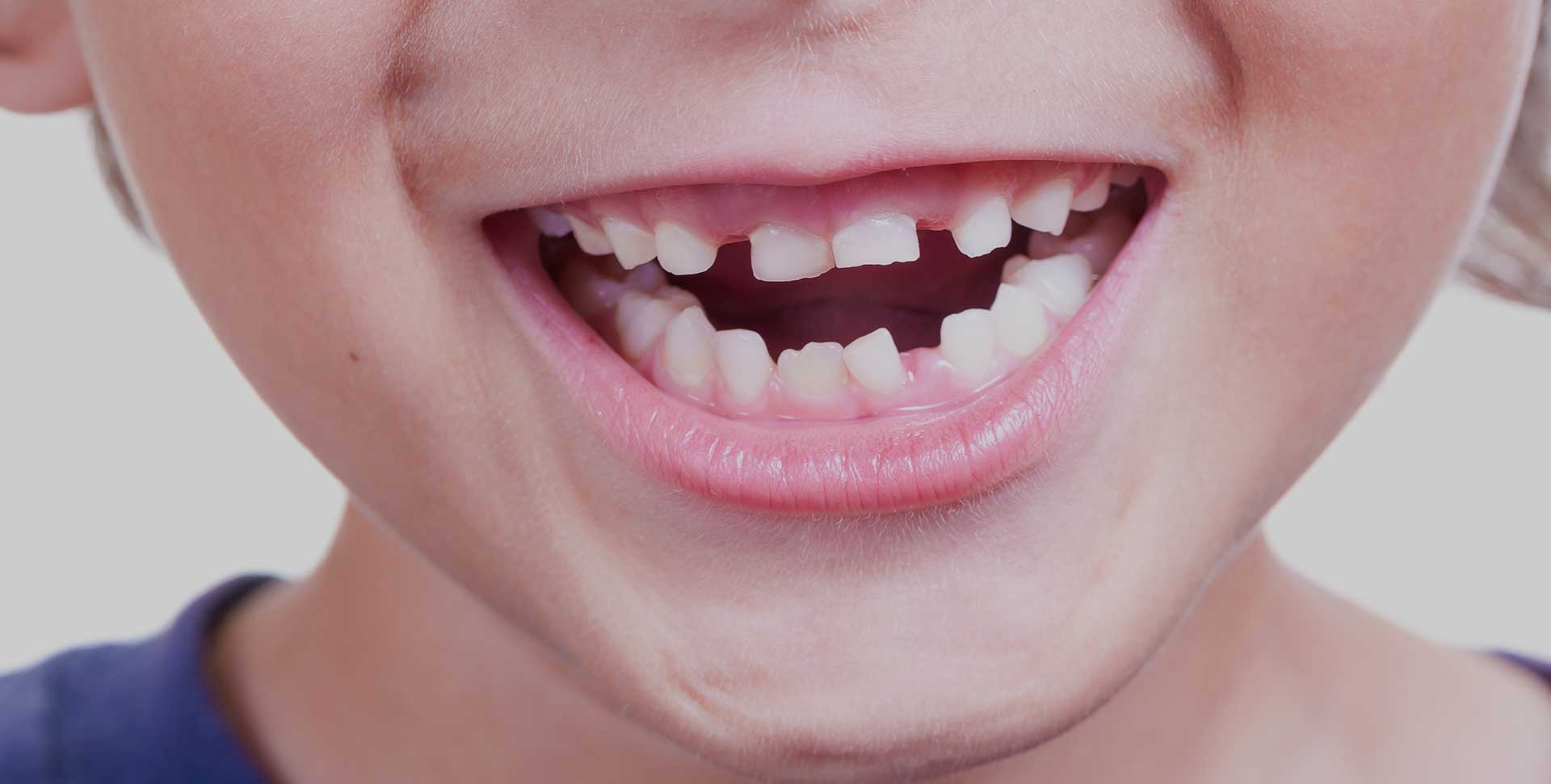 South Calgary Orthodontist | McKenzie Orthodontics | Early Orthodontic Treatment