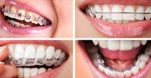 South Calgary Orthodontist   McKenzie Orthodontics   Braces Types