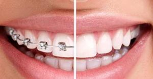 South Calgary Orthodontist | McKenzie Orthodontics | Braces