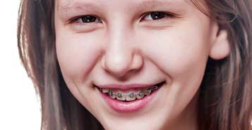 South Calgary Orthodontist | McKenzie Orthodontics | Orthodontic Emergencies