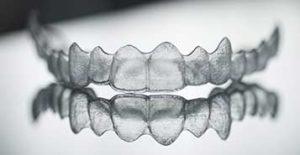 South Calgary Orthodontist | McKenzie Orthodontics | Invisalign Braces