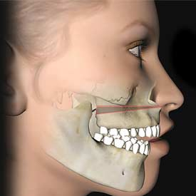 South Calgary Orthodontist | McKenzie Orthodontics | Corrective Jaw Surgery