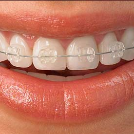 South Calgary Orthodontist | McKenzie Orthodontics | Damon Braces