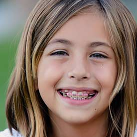 South Calgary Orthodontist | McKenzie Orthodontics | Dentofacial Orthopedics