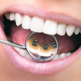 South Calgary Orthodontist | McKenzie Orthodontics | Lingual Braces